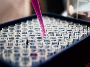 Thuis een DNA test